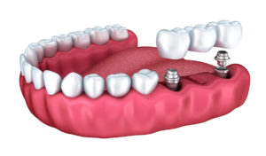 Multiple Teeth Replacements
