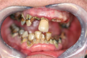 Full Mouth Rehabilitation at Care Dental Leicester - Case 1