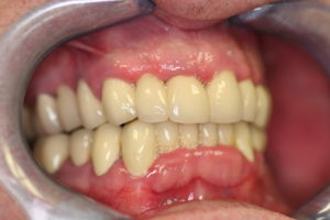 Full Mouth Rehabilitation at Care Dental Leicester - Case 1.2