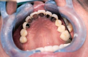 Full Mouth Rehabilitation at Care Dental Leicester - Case 3.1