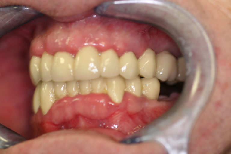 Full Mouth Rehabilitation Leicester Case 1