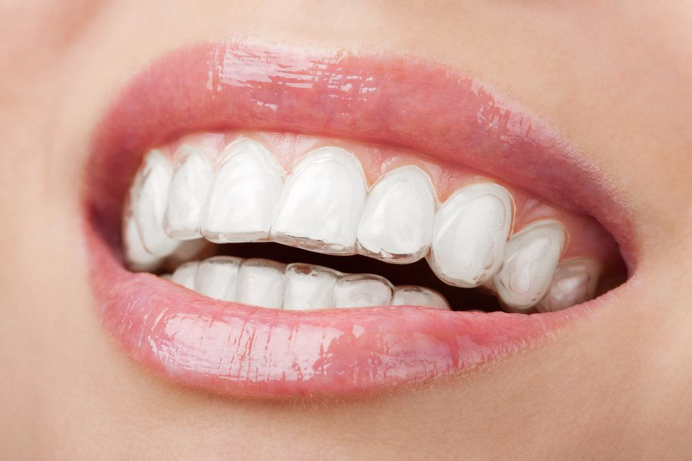 Invisalign Treatment in Leicester